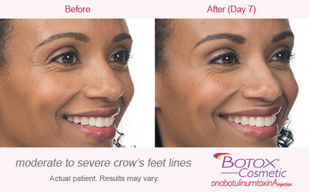 BOTOX Cosmetic for Crow's Feet Before & Afters