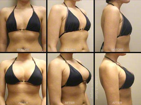 breast enlargement operation