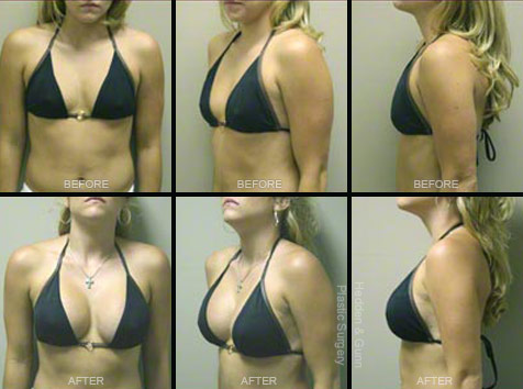 breast enlargement doctors