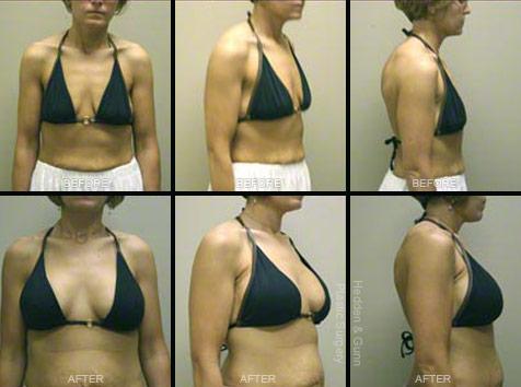 best procedure for breast augmentation
