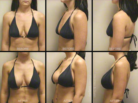 breast lifts before and after pictures  613427