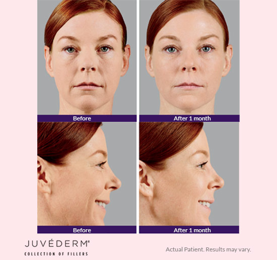 Juvederm Collection of Fillers Birmingham, Alabama