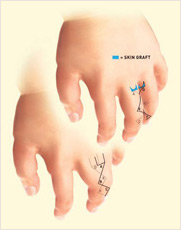 Hand surgery birth deformities