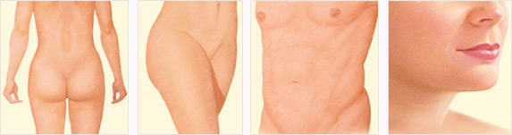Liposuction results diagram