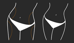 Diagram of body areas treated by Smartlipo