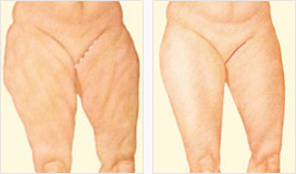 Medial thigh lift incision
