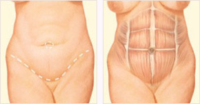 Diagram of tummy tuck incision between pubic hairline and belly button