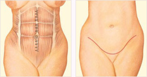 Diagram of tummy tuck incision around the navel