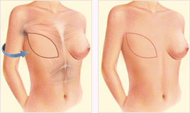 Breast reconstruction latissimus dorsi flap for breast implant