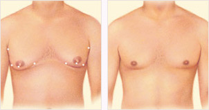 Male breast reduction liposuction incisions