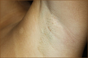 Transaxillary breast augmentation scar photo 1