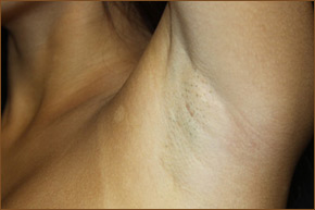 Transaxillary breast augmentation scar photo 2