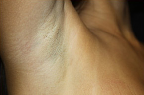 Transaxillary breast augmentation scar photo 4