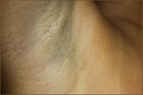Transaxillary breast augmentation scar photo 5