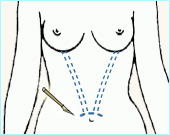 Diagram showing the incision site and endoscopic channels for transumbilical breast augmentation