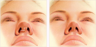 Nose surgery rhinoplasty incision