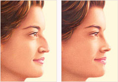 Nose surgery (rhinoplasty) before and after