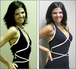 Dana Littleton breast augmentation before and after