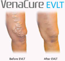 Varicose vein laser treatment before and after