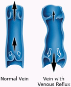 Diagram of normal vein and vein with venous reflux