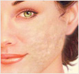 Face with discoloration, surface irregularities